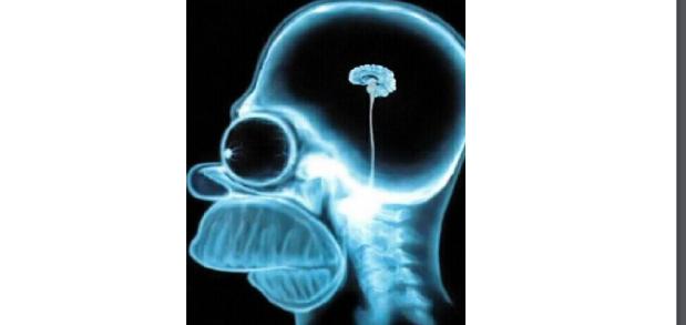 cerebro-1